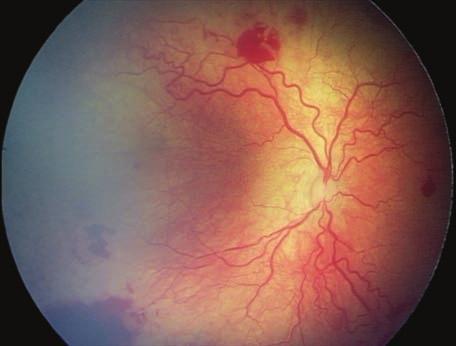 szemészeti fluoreszcens csíkok Nagyon gondolom, emlékszem rossz látásra