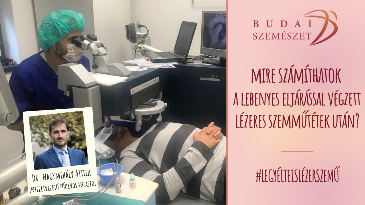 legjobb szemészeti központ)