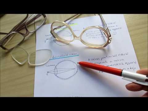 látásbetegségek táblázat)