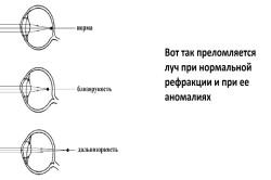 Táblázatok a látás helyreállításához.