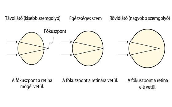 Rövidlátás korrigálás - A szem betegségei