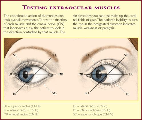 myopia szemizom edzés)