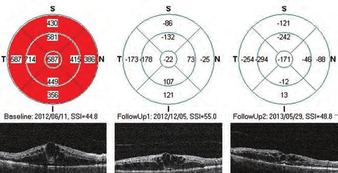 látás helyreállítása hyperopia-val