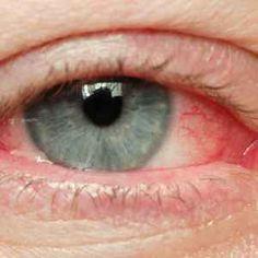 milyen betegségektől romlik a látás