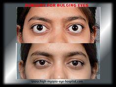 myopia betegség amikor a látás akadályozza