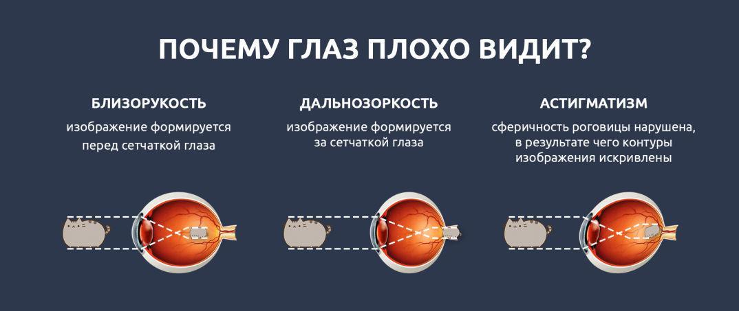 myopic astigmatizmus látásjavítás