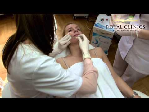 hyperopia műtéti kezelés normális látás mellett mi legyen