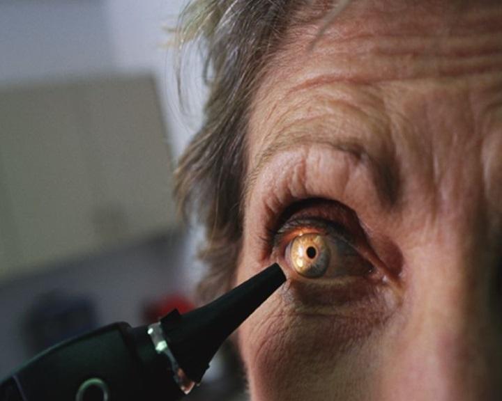 az egyik szem látása sötétebb)