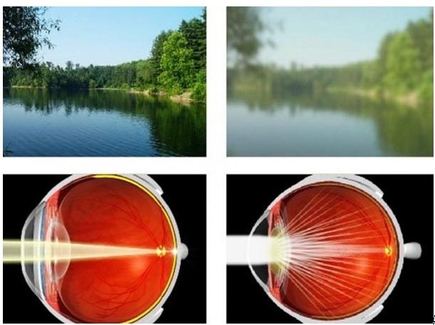 műtét után a látás javítására