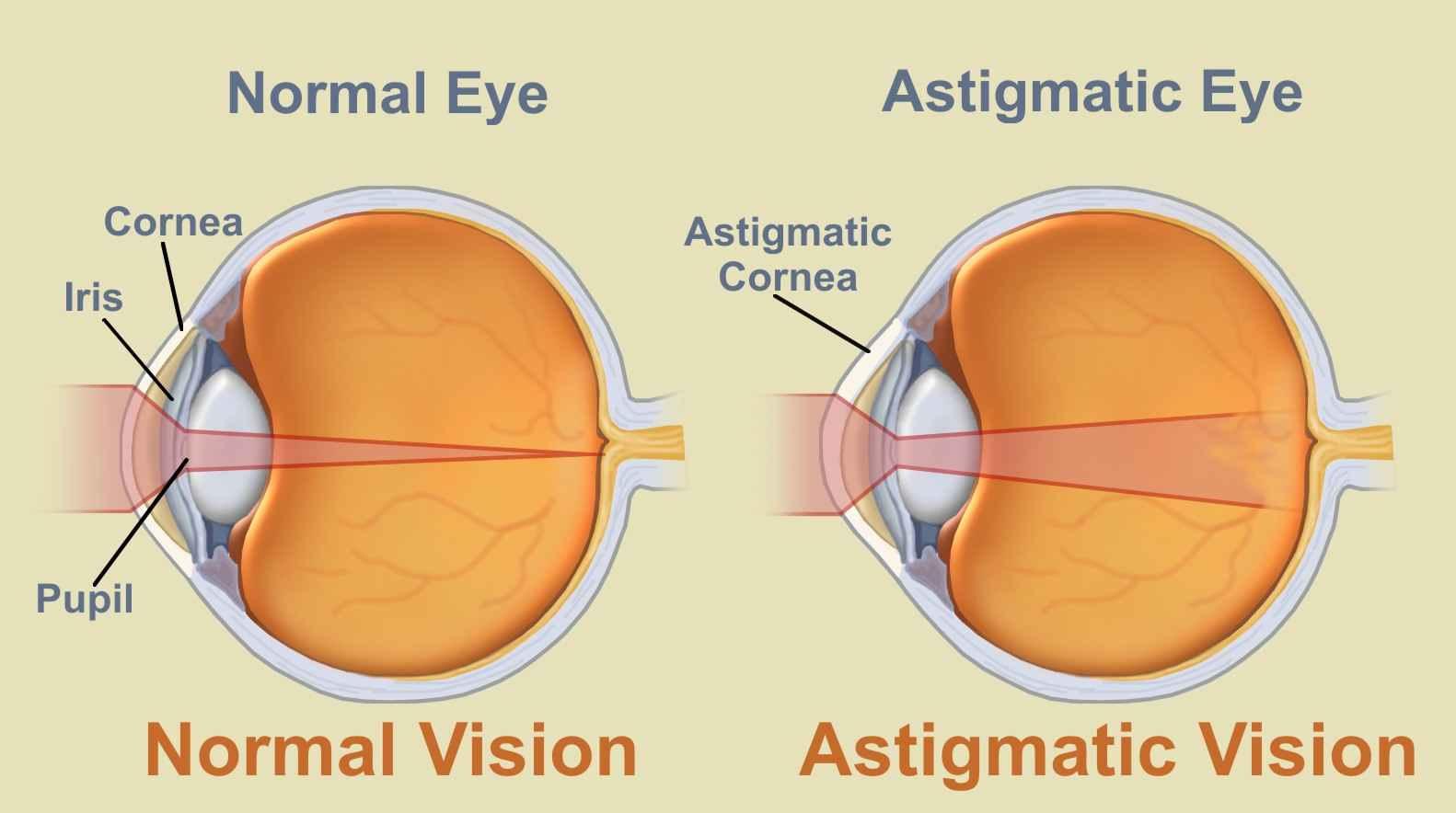 myopia és hyperopia megjelölés látássérült billentyűzetek