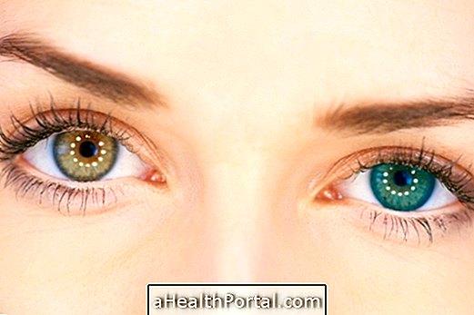 hogyan nevezik a látást másképp a látás megállása