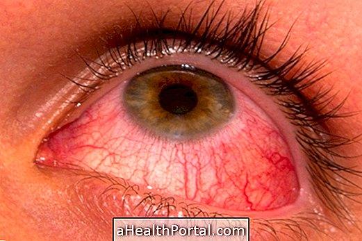 szemészeti kötőhártyagyulladás-kezelés)