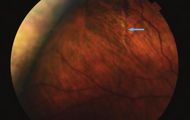 myopia szokatlan kezelés)