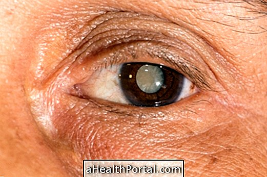 hogyan lehet elkerülni a látási problémákat