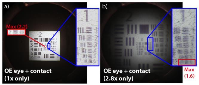 A szemeinek diagnosztizálása az otthoni számítógépen - Asztma August