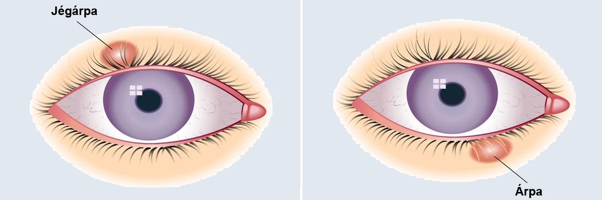 a látás helyreállításának léptéke morel recept a látáshoz