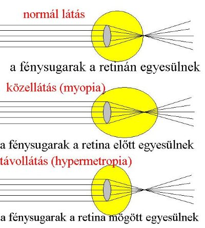amit normális látásnak nevezünk