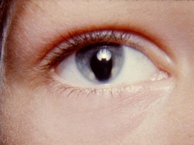 látásélesség magnézium A testmozgás javítja a látást