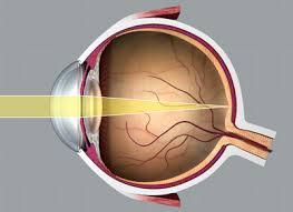 a látás éles romlása, mit kell venni)