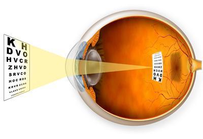 a látás átalakítása dioptriában)
