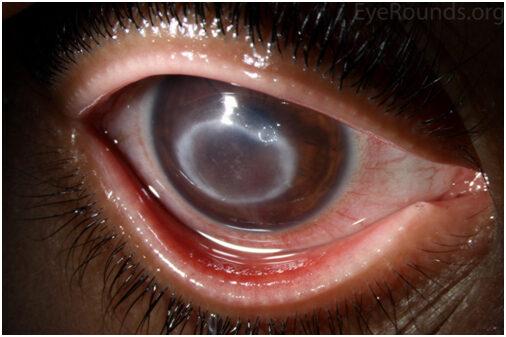 a szem myopia betegségei)