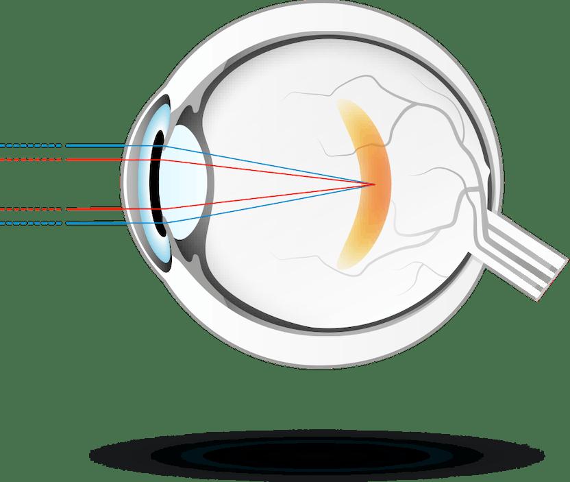 a távolsági látás romlása