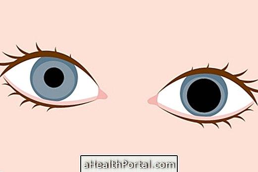 anisocoria látás)