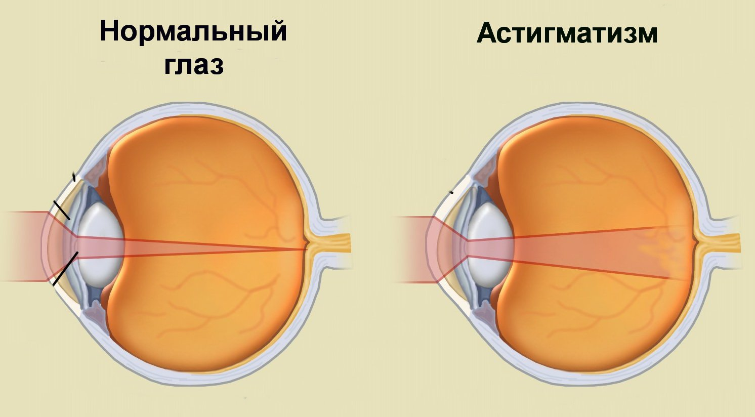 állítsa vissza a látást asztigmatizmussal)