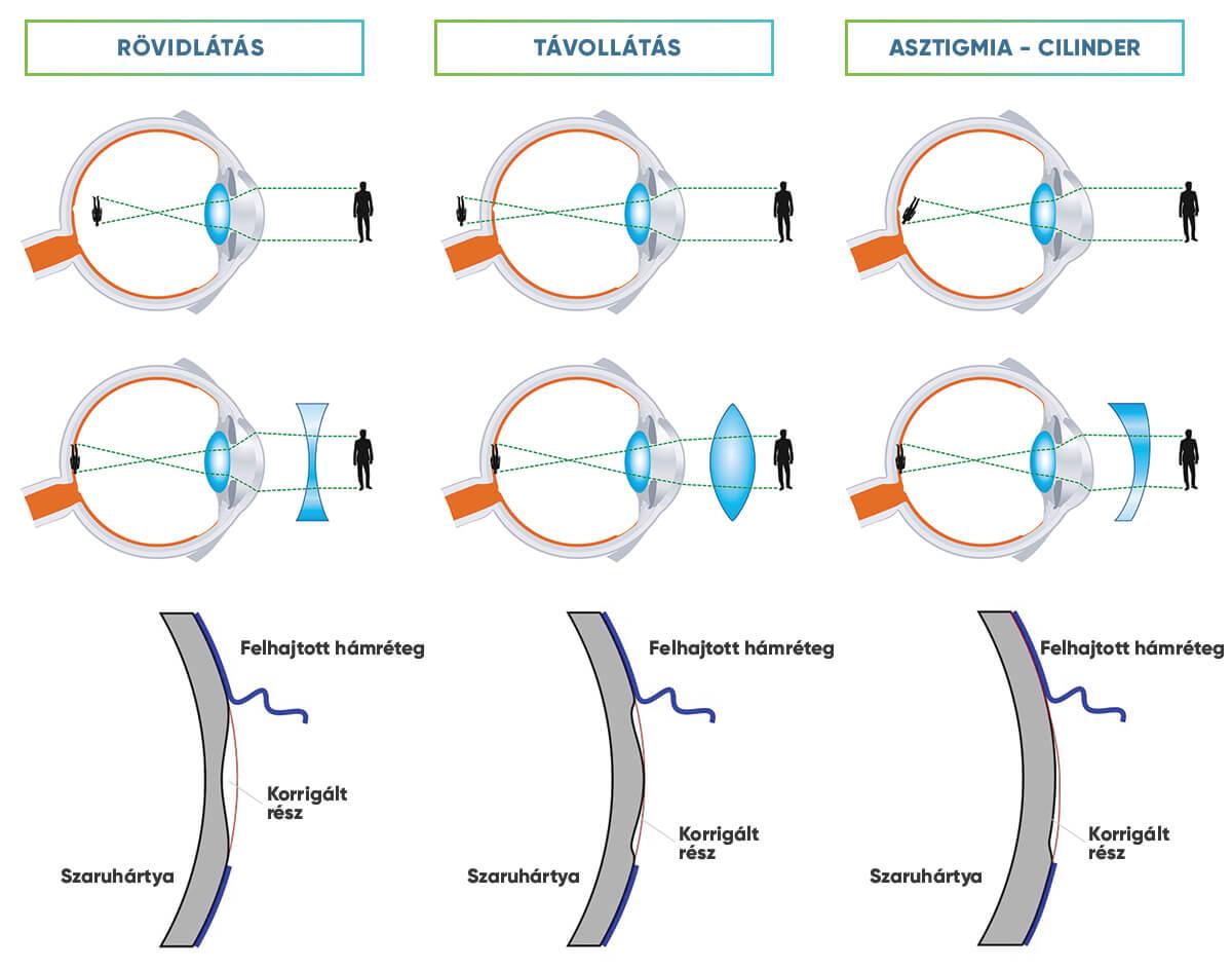 nézz a távolba rövidlátás a látás optikai elemei