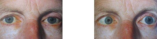 makula látás kezelése