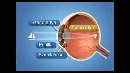 video szemműtét myopia