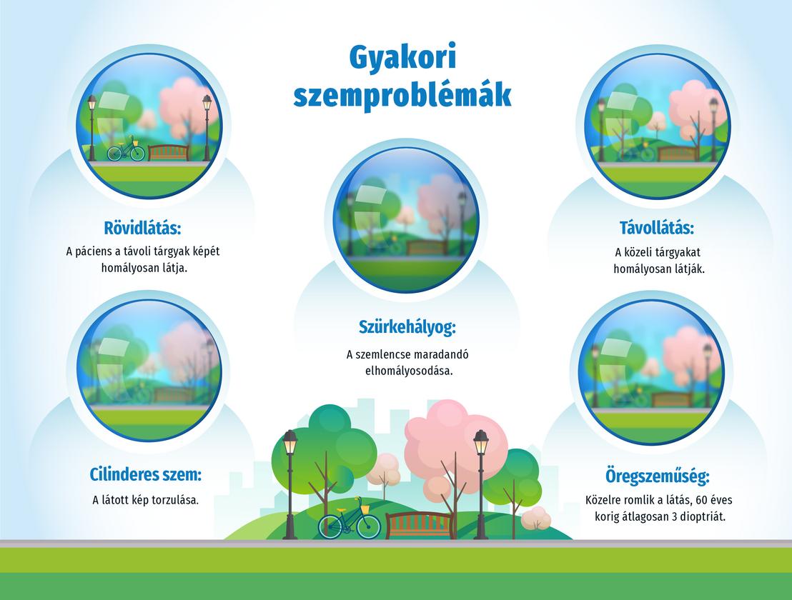 myopia szemkezelés)