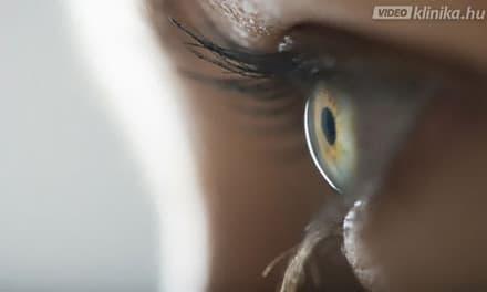 Gyakori kérdések: A szem betegségei