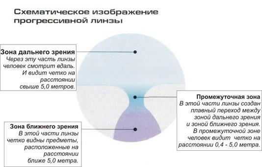 az asztigmatizmus rontja a látást)