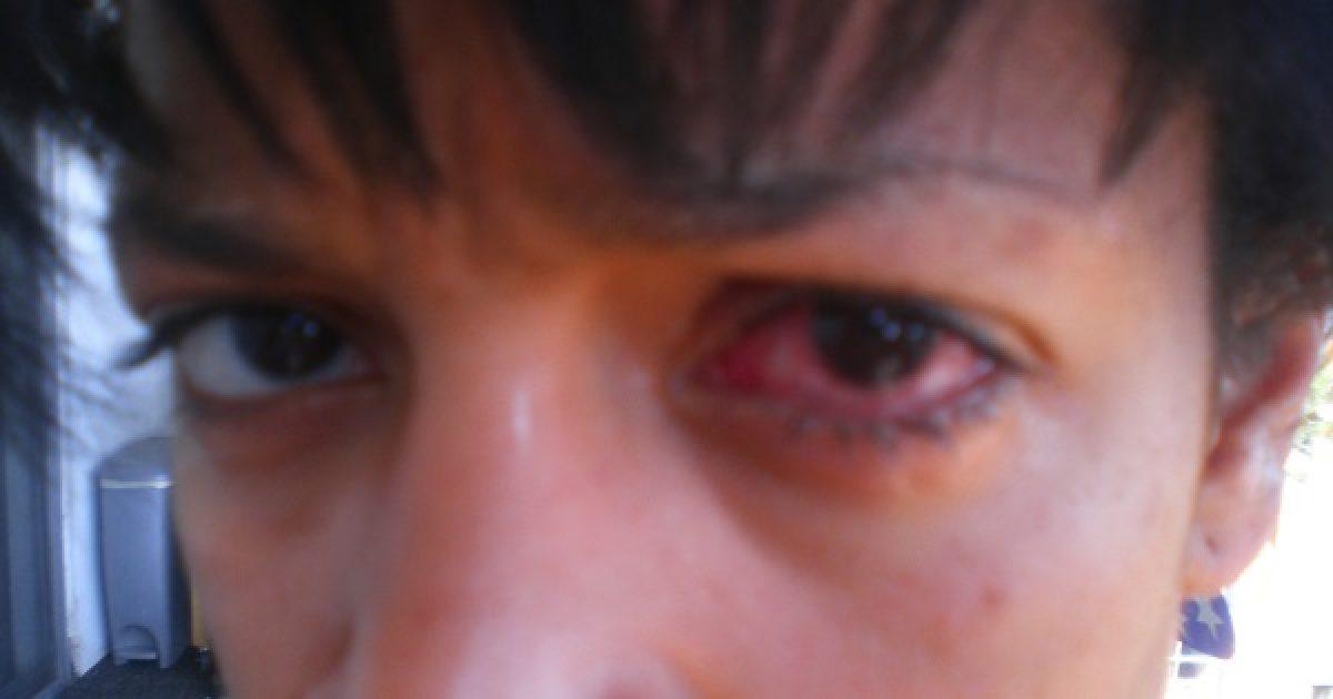 az egyik szemben romlik a látás