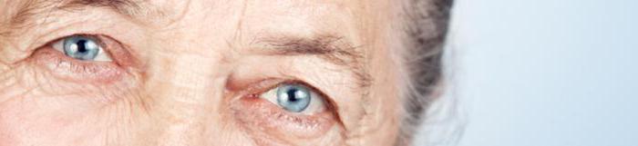 az életkorral összefüggő látáskárosodás okai)