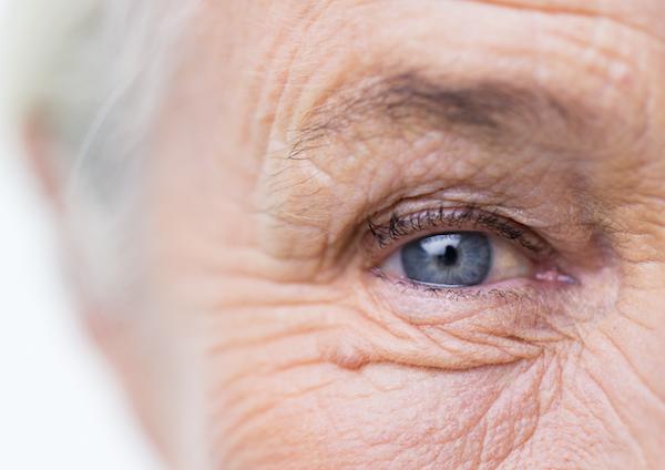 az életkorral összefüggő látásromlás oka)