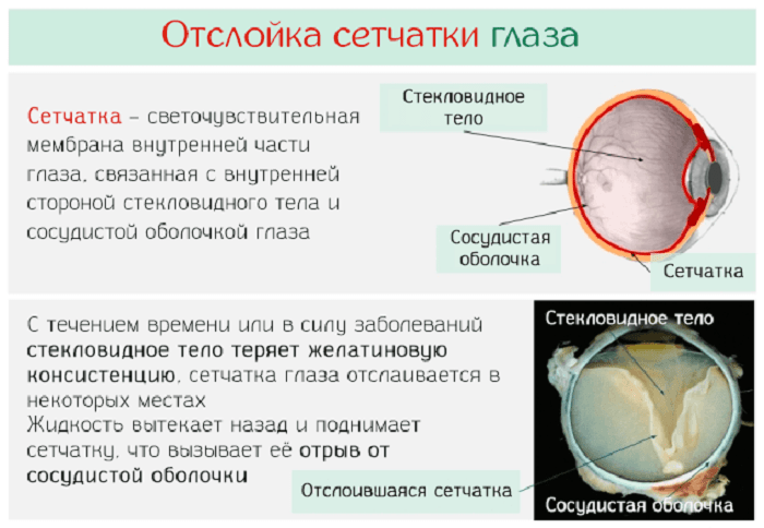gyógyszerek a látás okuwaite és
