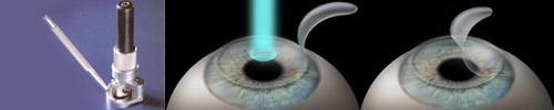 látáskorrekciós műtét)