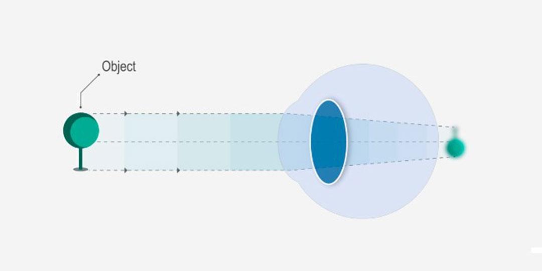 miért a rövidlátás az egyik szemében