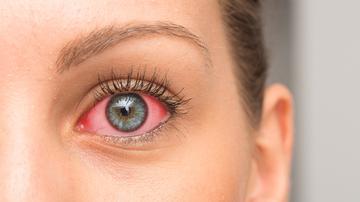 A 10 leggyakoribb jel a szemen - Súlyos betegségre utalnak