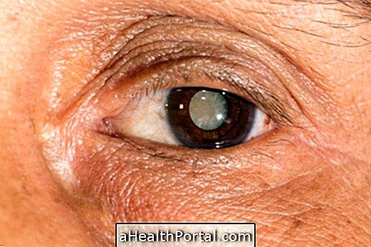 Hogyan ellenőrizheti a látást otthon - Skizofrénia September