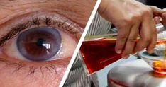 a látás romlik, a nyak fáj)