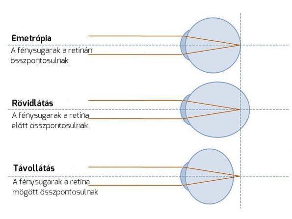 myopia kezelése és táplálása