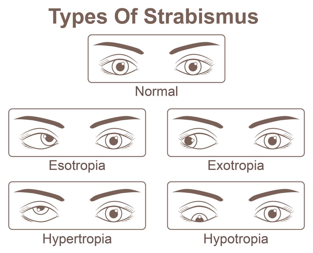 myopia hyperopia amblyopia