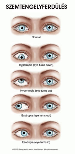 a jobb szem látásélessége normális)