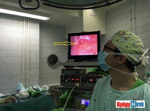 hogyan lehet gyógyítani a hiperópiát műtét nélkül)