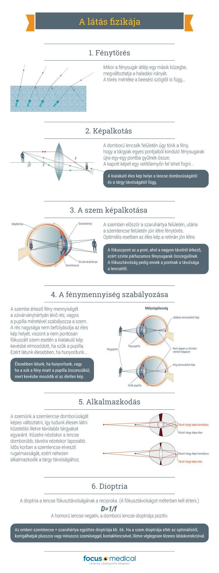 éles látás műtét nélkül)