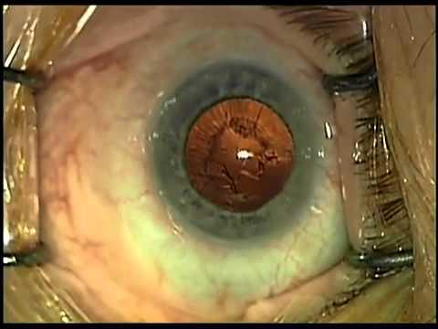 kettős látás szürkehályog műtét után)