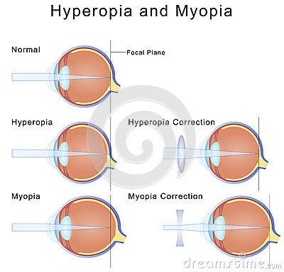 myopia hyperopia és a